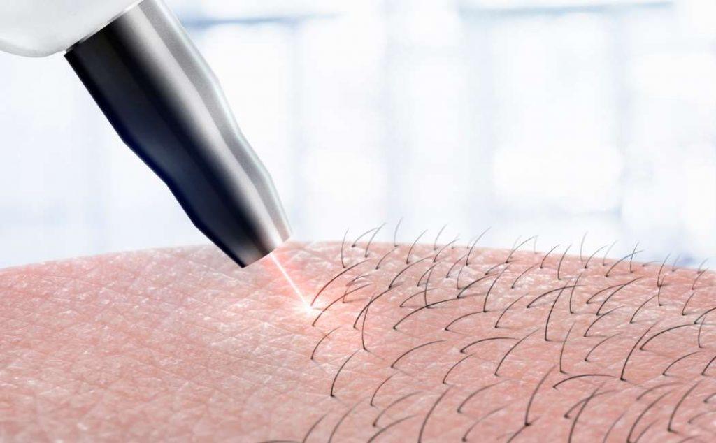 Epilazione Permanente con Laser a Diodo